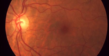 Retina – Cortesía Dr. Patricio Schlottmann