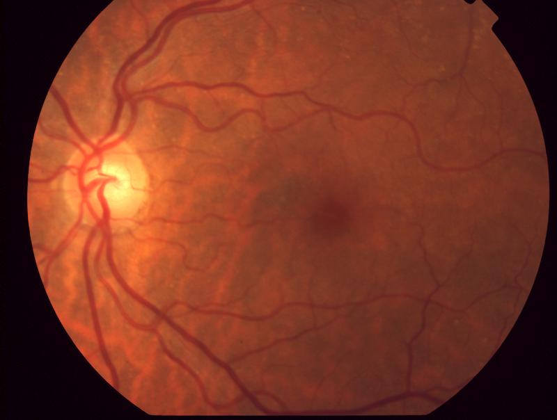 Retina - Cortesía Dr. Patricio Schlottmann