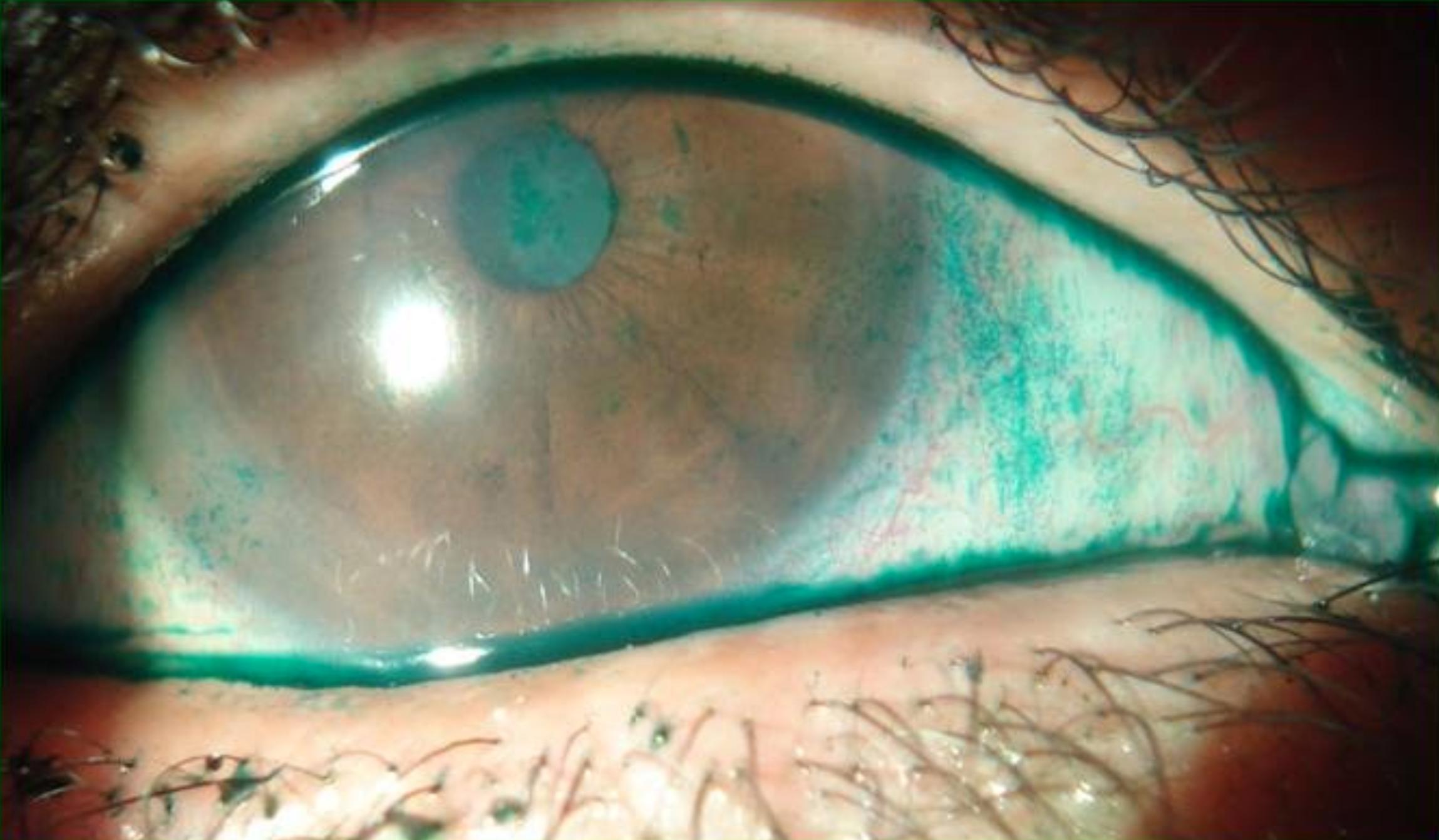Cornea - Superficie Ocular / Cortesía Dr. MartÍn Berra
