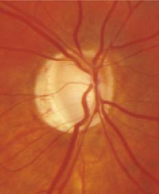 Glaucoma- Cortesía Dr Héctor Fontana
